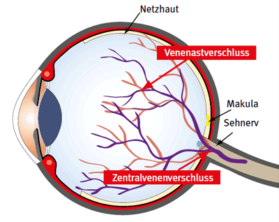 Retinaler Venenverschluss